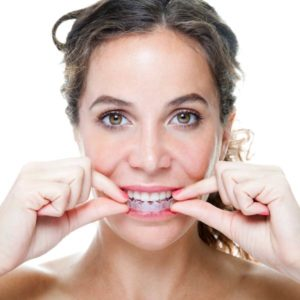 woman putting in Invisalign liner